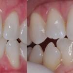 estetyczne wypełnienie w zębie 21 #dentysta #stomatolog #mokotów #dentystamokotów #warszawa #alchemiauśmiechu #leczeniekanałowe #stomatologiaestetyczna