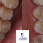 estetyczna wymiana starych, nieszczelnych wypełnień #dentysta #stomatolog #mokotów #dentystamokotów #warszawa #alchemiauśmiechu #leczeniekanałowe #stomatologiaestetyczna