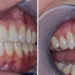korona pełnoceramiczna wykonana na zębie 12 #dentysta #stomatolog #mokotów #dentystamokotów #warszawa #alchemiauśmiechu #leczeniekanałowe #stomatologiaestetyczna