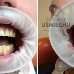 """tymczasowa odbudowa estetyczna: pacjent przez lata 'zjadał"""" swoje zęby, przez co znacznie uległy skróceniu, aby przygotować pacjenta do całkowitej odbudowy wykonuje się ją na początek tymczasowo, aby pacjent miał szansę przyzwyczaić się do nowego zgryzu #dentysta #stomatolog #mokotów #dentystamokotów #warszawa #alchemiauśmiechu #leczeniekanałowe #stomatologiaestetyczna"""