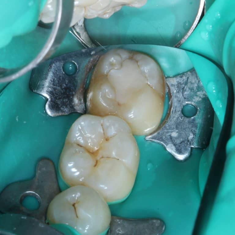 ząb okryty koferdamem